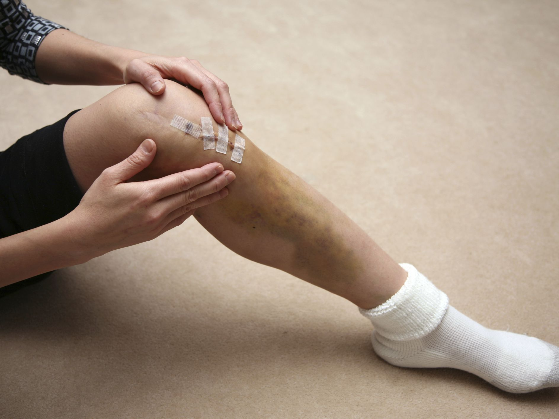 Incision Care For Knee Replacement Patients